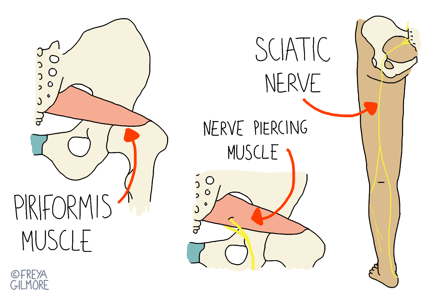 Sciatica and Piriformis Syndrome