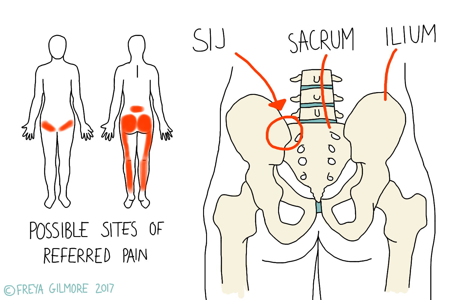 The Sacroiliac Joint (SIJ)