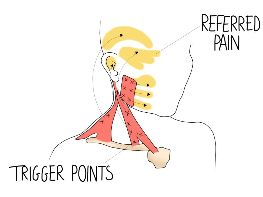 Trigger points in the head and neck